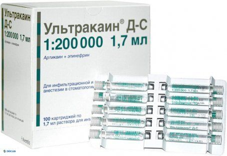 Ультракаин ДС форте раствор для инъекций картридж 1,7 мл, №100
