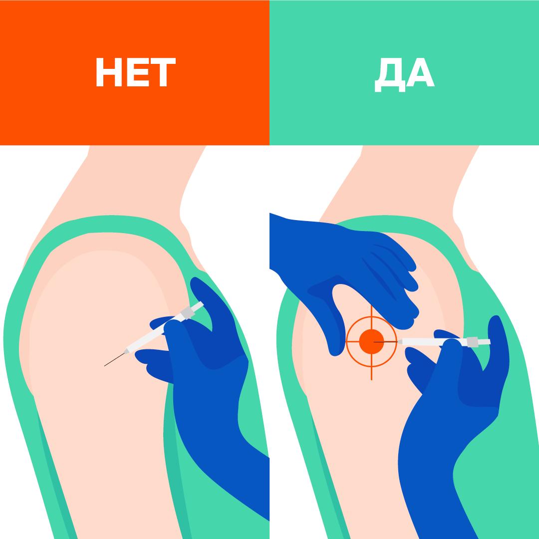 как правильно делать укол в руку